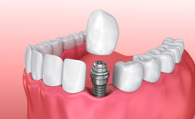 Tooth implant installation process.